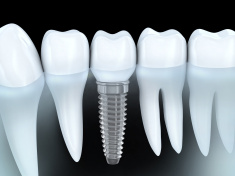 stock-photo-66331997-dental-implant